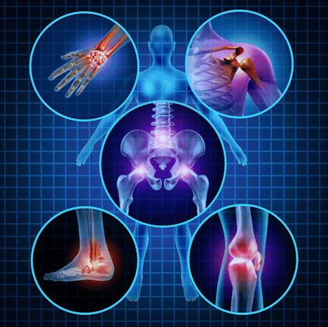 Thoái hóa sụn - khớp và hướng điều trị